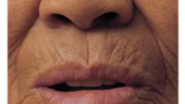 wrinkles1