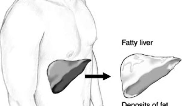 fattyliverdiagram1