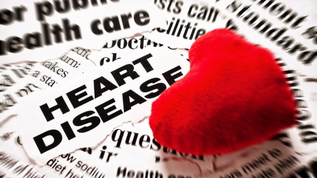 Half of America has heart disease