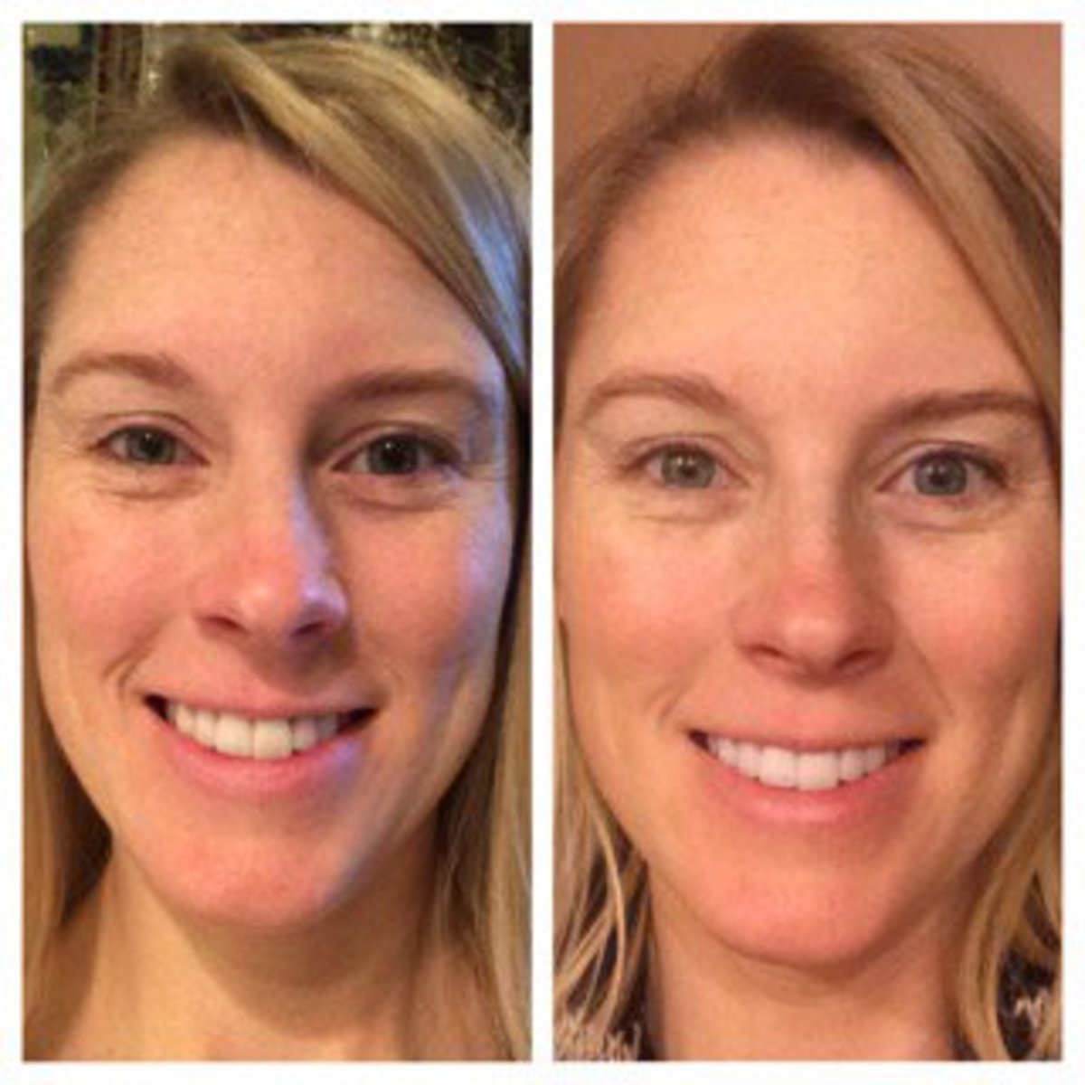 Drink more water ~ before and after pictures - Lindaland