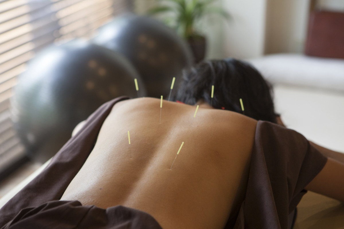 Should You Get Regular Acupuncture for Health Maintenance