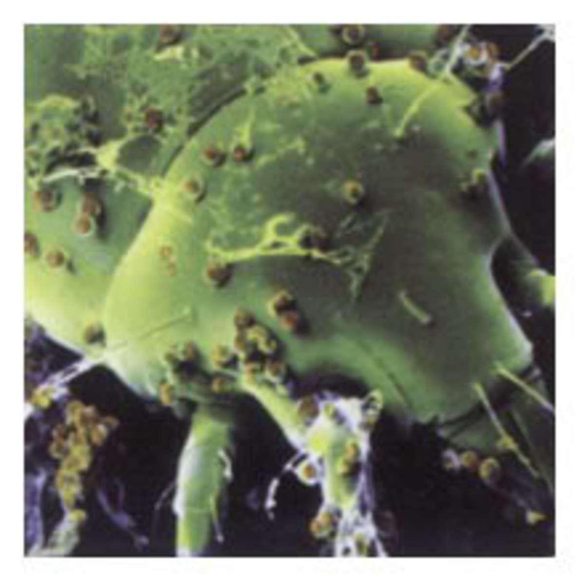dustmite1