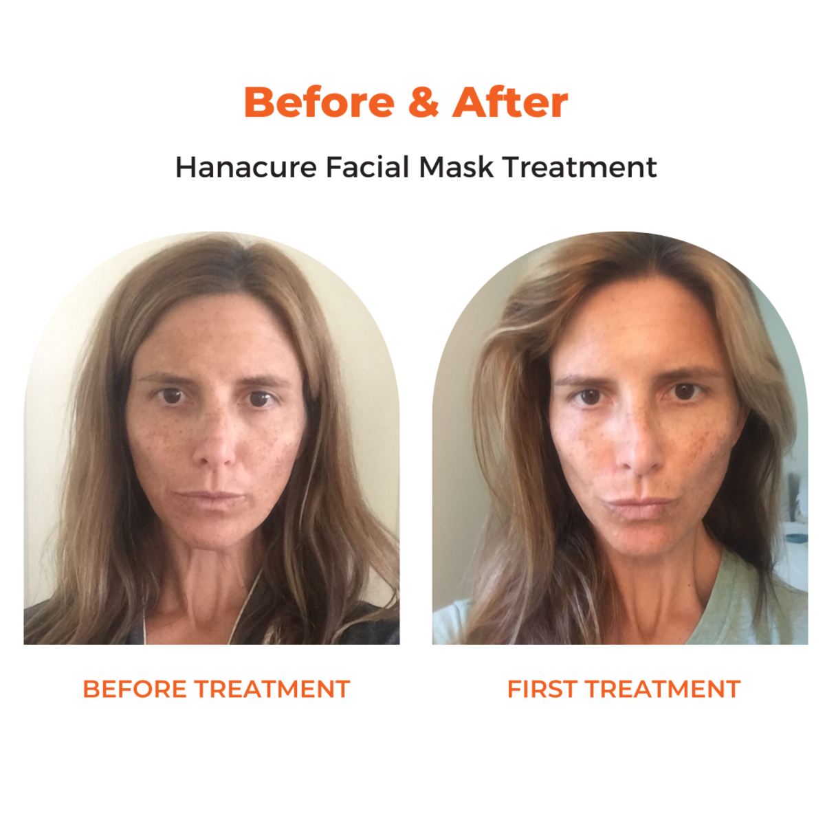 Before and after the first hanacure facial treatment