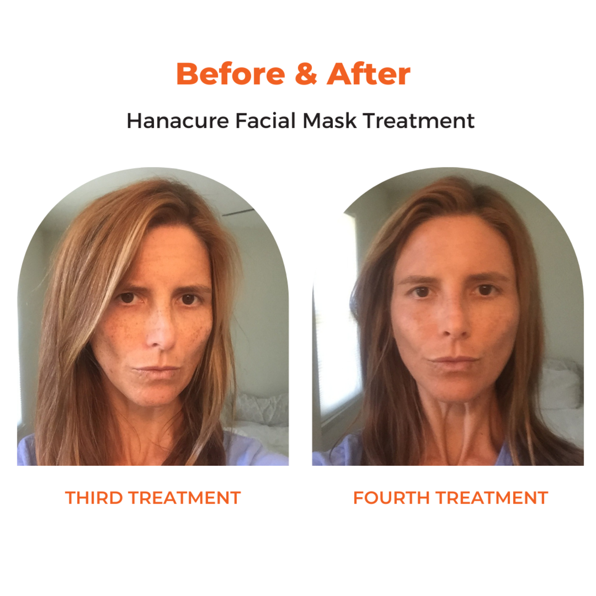 Before and after the third and fourth Hanacure treatments